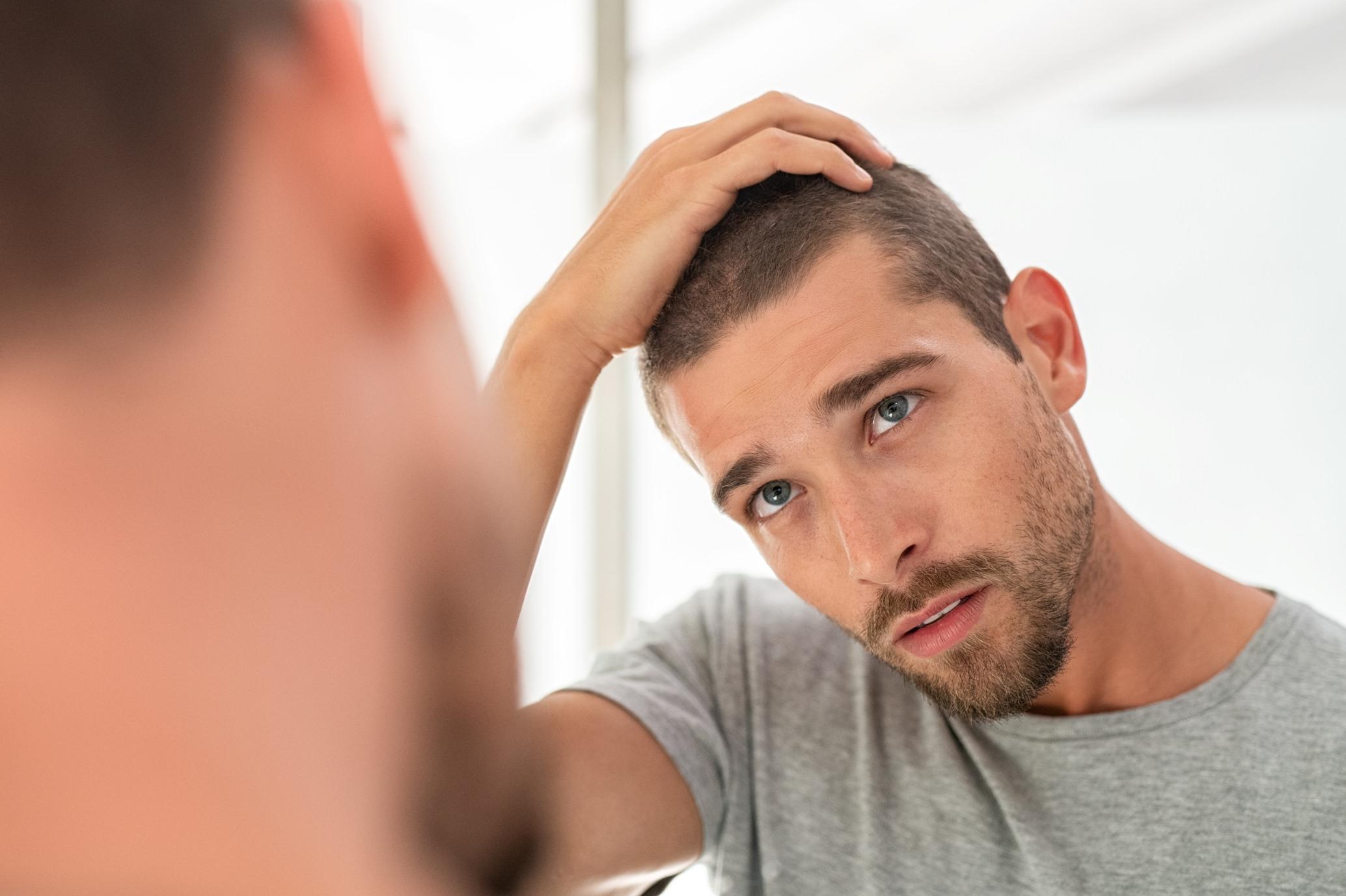 Alopecia e calvizie: il trapianto di capelli - Trapianto ...